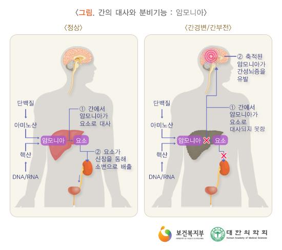 간의대사와분비기능:암모니아