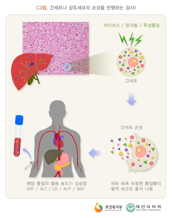 간세포나담도세포의손상을반영하는검사