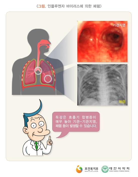 인플루엔자바이러스에의한폐렴