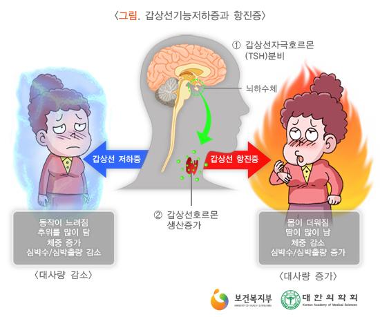 갑상선기능저하증과항진증