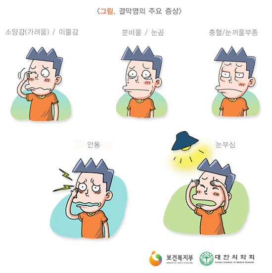 결막염의주요증상