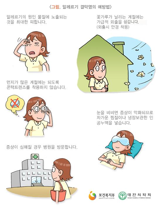알레르기결막염의예방법