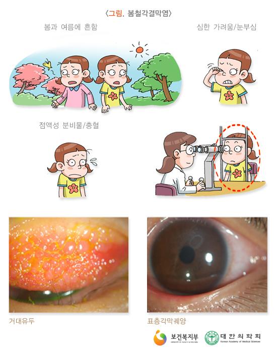 봄철각결막염