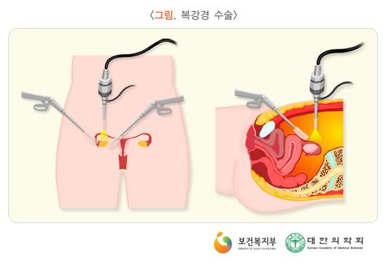 복강경수술