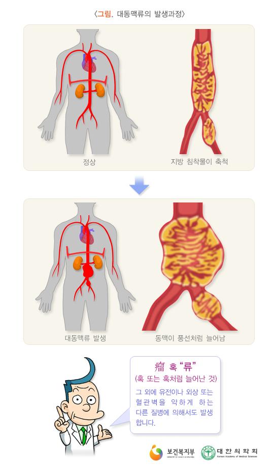 대동맥류의발생과정