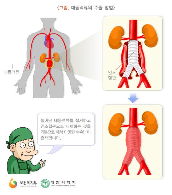 대동맥류의수술방법