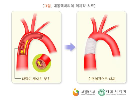 대동맥박리의외과적치료