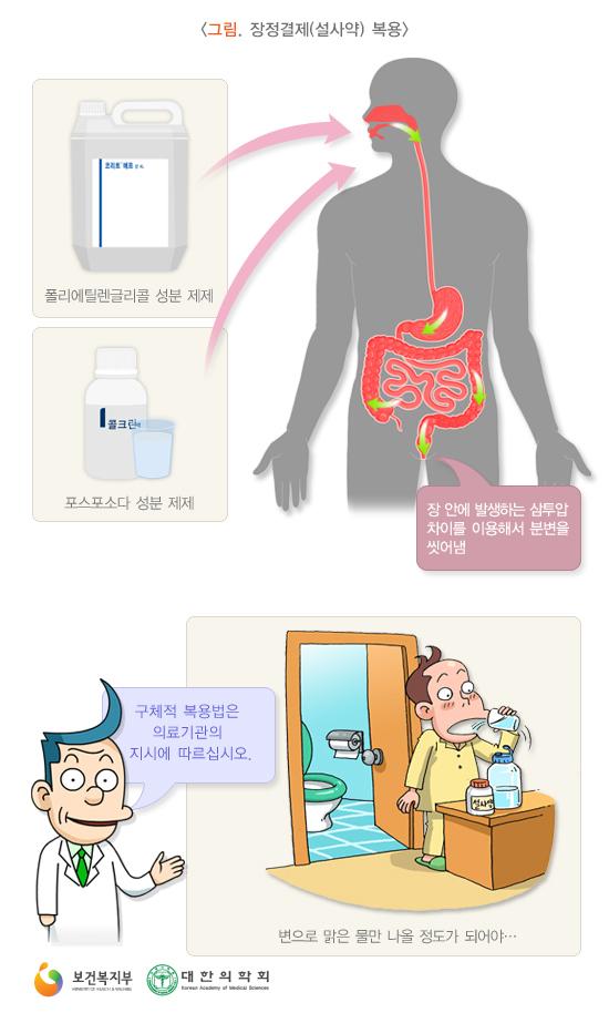 장정결제(설사약)복용