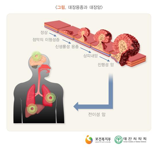 대장용종과대장암