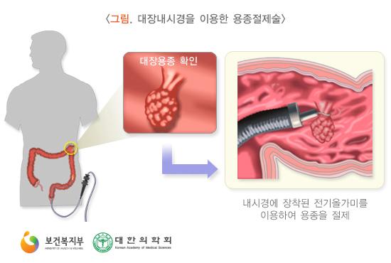 대장내시경을이용한용종절제술