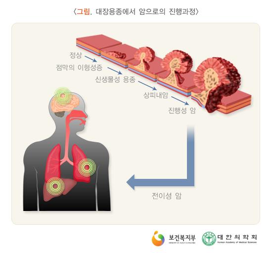 대장용종에서암으로의진행과정