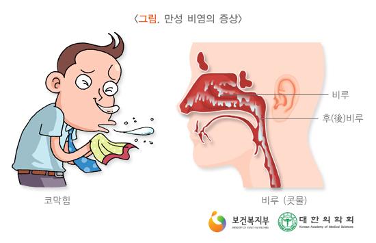 만성비염의증상