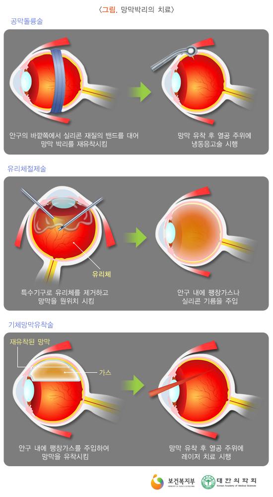 망막박리의치료