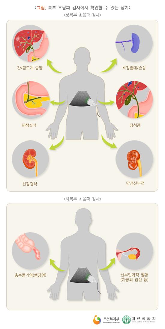 복부초음파검사에서확인할수있는장기