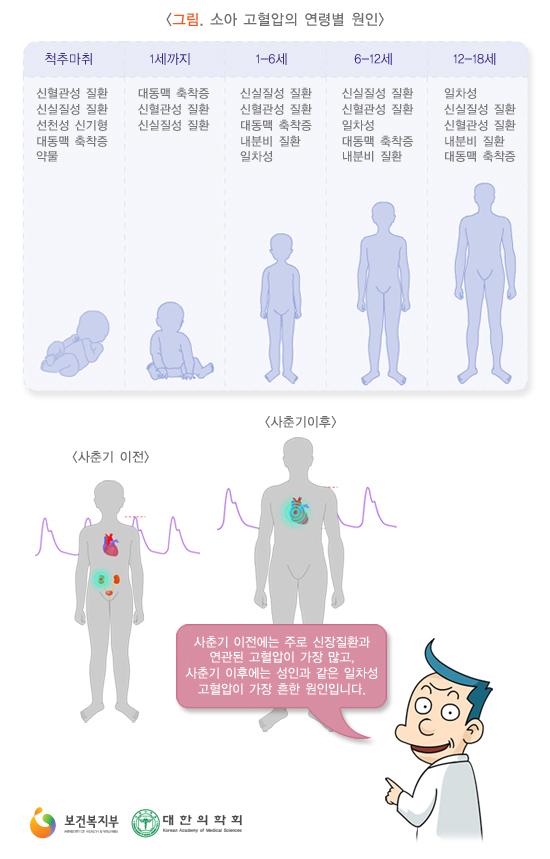 소아고혈압의연령별원인