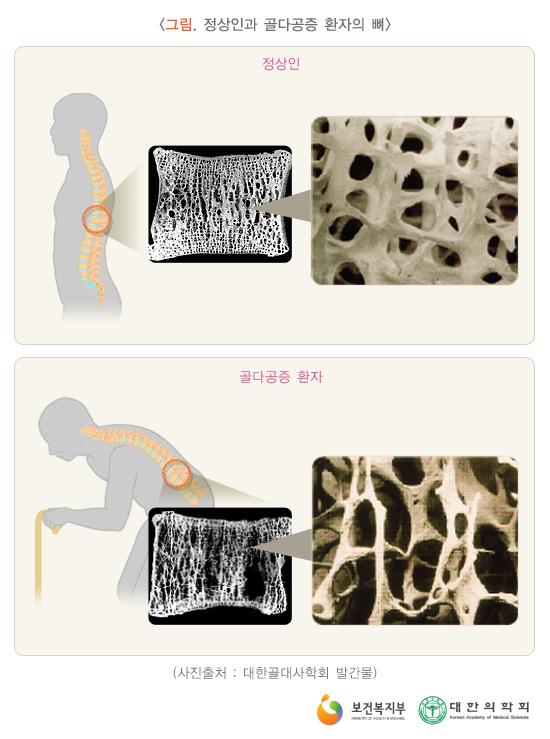 정상인과골다공증환자의뼈