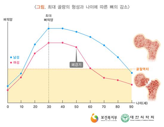 최대골량의형성과나이에따른뼈의감소