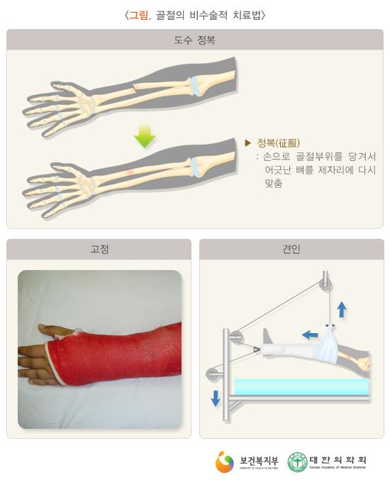 골절의비수술적치료법