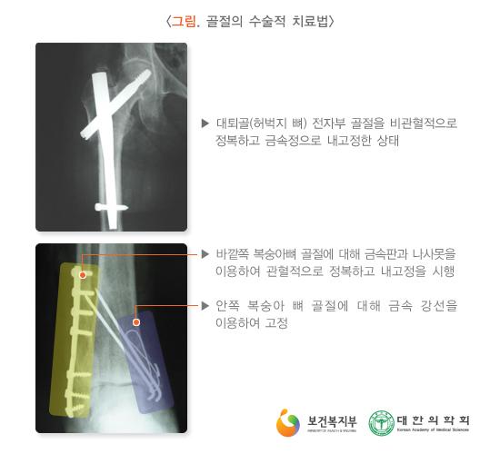 골절의수술적치료법
