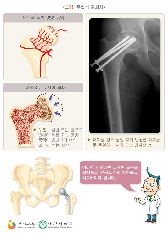 무혈성골괴사
