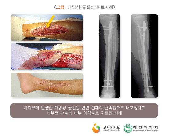 개방성골절의치료사례