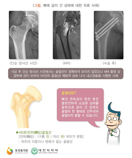 뼈에금이간상태에대한치료사례