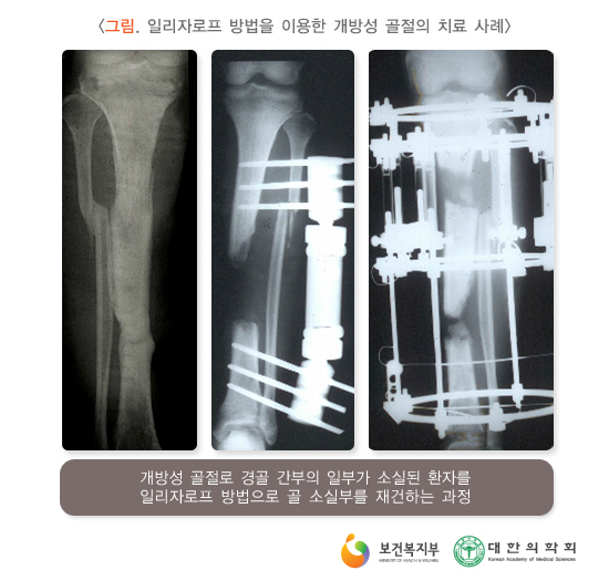 일리자로프방법을이용한개방성골절의치료사례