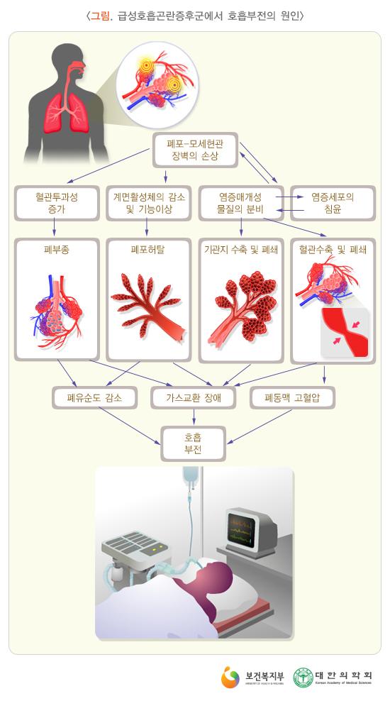 급성호흡곤란증후군에서호흡부전의원인