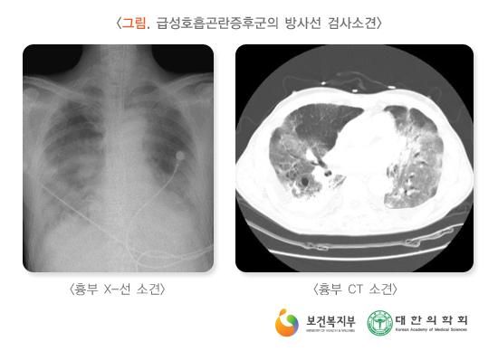급성호흡곤란증후군의방사선검사소견