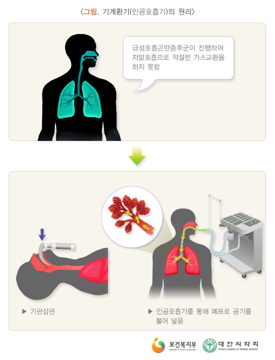 기계환기(인공호흡기)의원리
