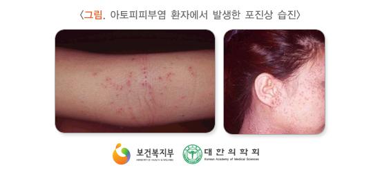 아토피피부염환자에서발생한포진상습진