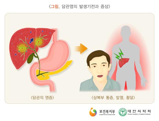 담관염의발생기전과증상