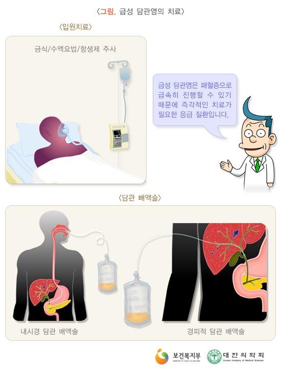 급성담관염의치료