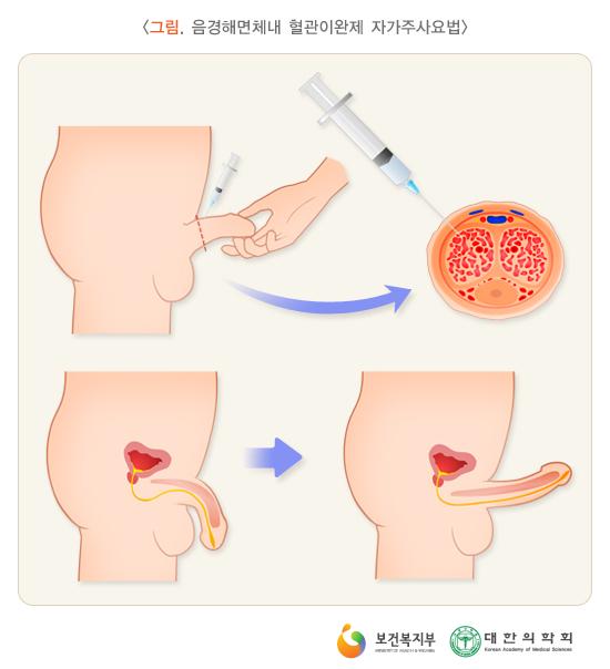 음경해면체내혈관이완제자가주사요법