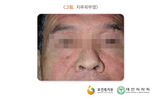 지루피부염