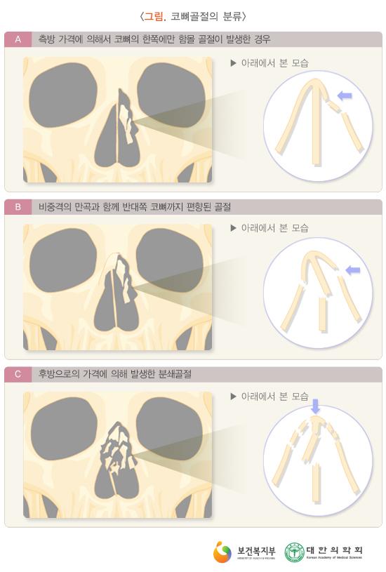 코뼈골절의분류