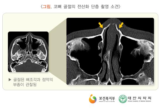 코뼈골절의전산화단층촬영소견