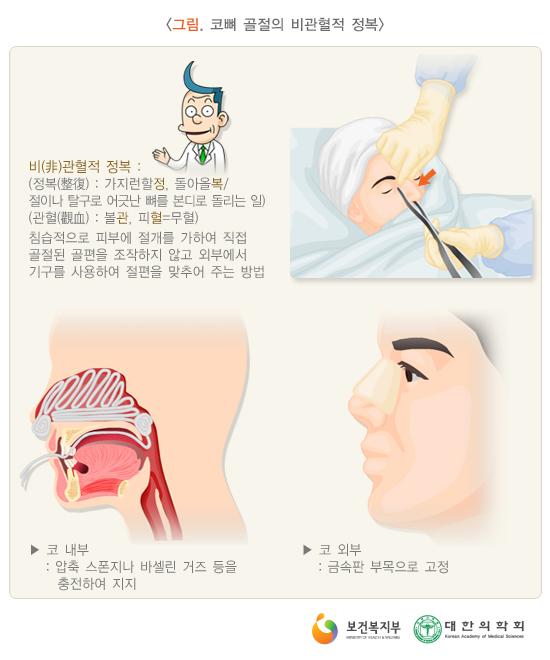 코뼈골절의비관혈적정복
