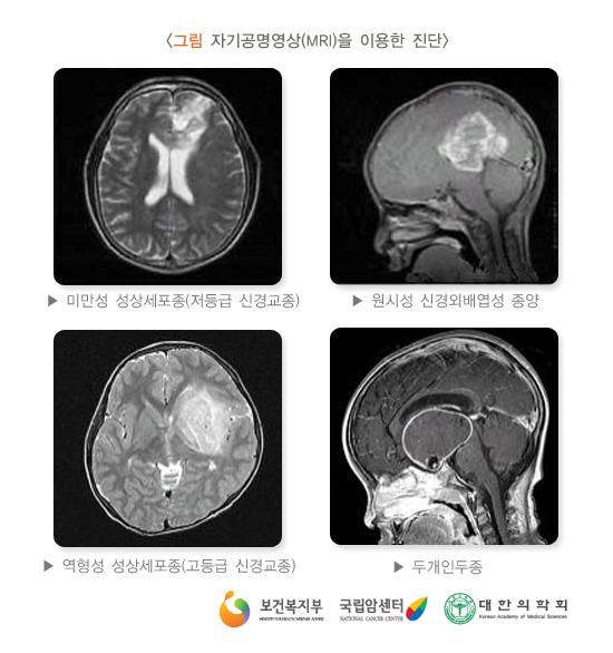 자가공명영상(MRI)을이용한진단