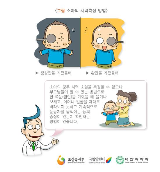 소아의시력측정방법