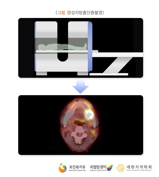 양성자방출단층촬영