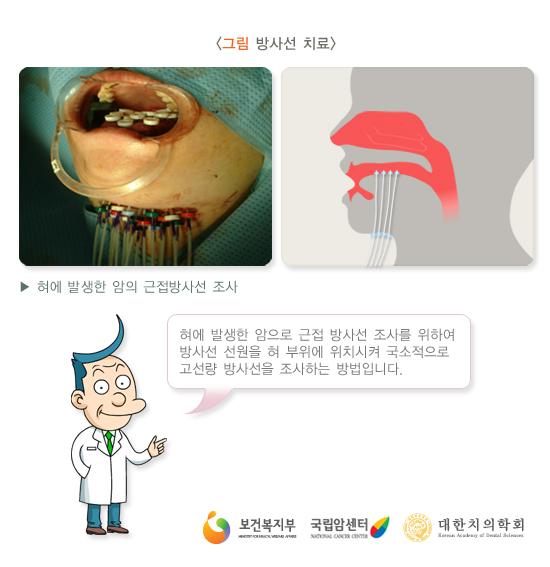혀에발생한암의근접방사선조사