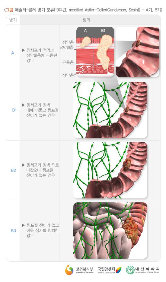 애슬러-콜러병기분류(1974년)_A기,B기