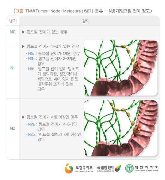 TNM(Tumor-Node-Metastasis)병기분류-N병기(림프절전이정도)