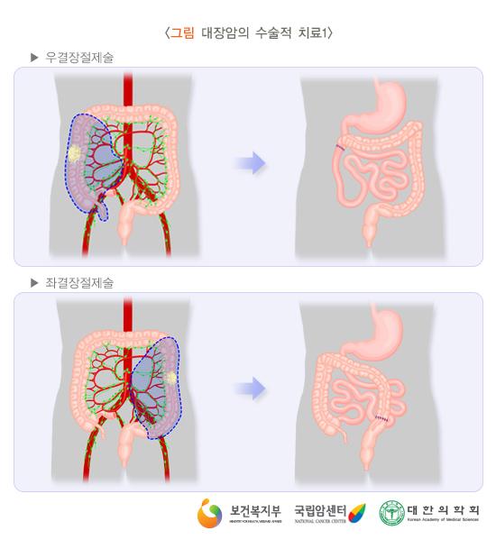 대장암의수술적치료1