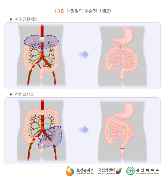대장암의수술적치료2