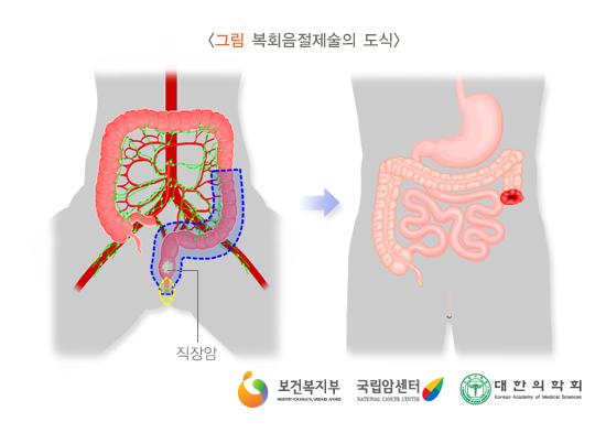 복회음절제술의도식