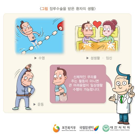 장루수술을받은환자의생활