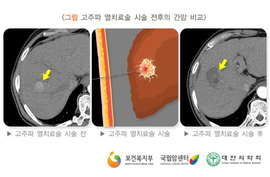 고주파열치료술시술전후의간암비교