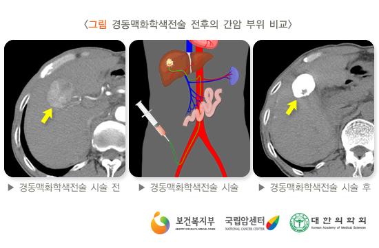 경동맥화학색전술전후의간암비교